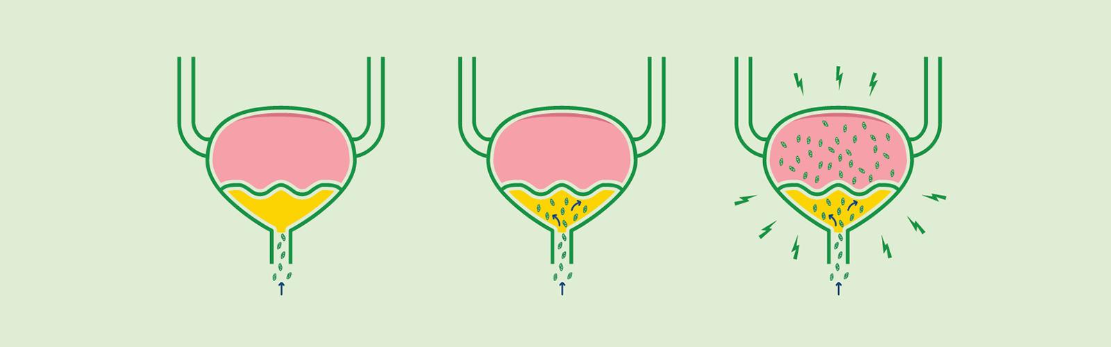 Bakterilerin bir idrar yolu enfeksiyonu sırasında mesaneyi nasıl etkilediği konusunda illüstrasyon