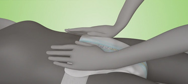 Thumbnail Image for the TENA Stretch Plus Product Application Video